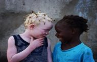 Out of the Shadows: The Resilience and Courage of People with Albinism in Mozambique